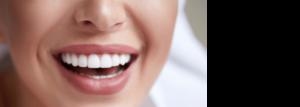 Versicherung suchen - vergleichen - abschliessen! - Zahnzusatz-Versicherung - Mehr Zahn - Barmenia