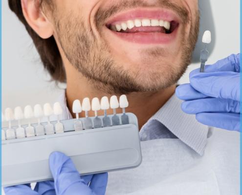 Versicherung suchen - vergleichen - abschliessen! - Zahnzusatz Versicherung - Die Bayerische